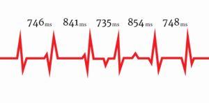 Die Herzratenvariabilität